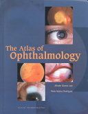 The Atlas of Ophthalmology
