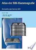 Atlas der MR-Mammografie