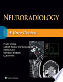Neuroradiology  A Core Review