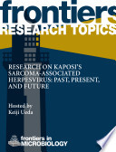 Research on Kaposi's sarcoma-associated herpesvirus: past, present, and future