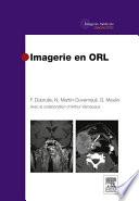 Imagerie Des Glandes Salivaires par Frédérique Dubrulle, Nadine Martin-Duverneuil, Guy Moulin, Arthur Varoquaux