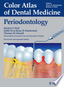 Color Atlas Of Dental Medicine Periodontology