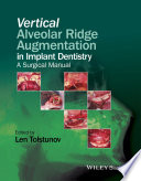 Vertical Alveolar Ridge Augmentation in Implant Dentistry