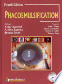 Phacoemulsification  Fourth Edition
