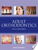 Adult Orthodontics : provides an authoritative resource on the subject....