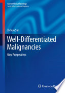 Well Differentiated Malignancies