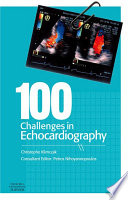 100 Challenges in Echocardiography E-Book Book Cover