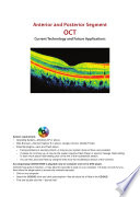 Anterior   Posterior Segment OCT  Current Technology   Future Applications