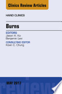 Burns An Issue Of Hand Clinics E Book