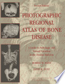 Photographic Regional Atlas of Bone Disease