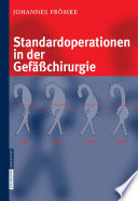Standardoperationen in der Gefässchirurgie