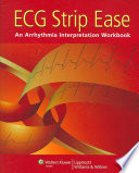 ECG Strip Ease