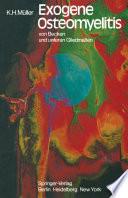 Exogene Osteomyelitis von Becken und unteren Gliedma  en