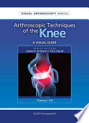Arthroscopic Techniques of the Knee