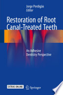 Restoration Of Root Canal Treated Teeth