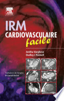 illustration IRM cardiovasculaire facile