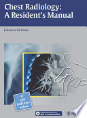 Chest Radiology  A Resident s Manual