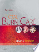 Total Burn Care