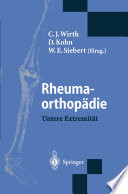 Rheumaorthopädie — Untere Extremität