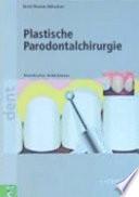 Plastische Parodontalchirurgie