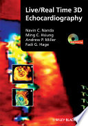 Live Real Time 3D Echocardiography