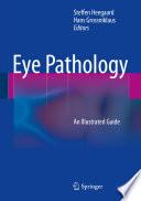 Eye Pathology