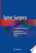 Spine Surgery : ...
