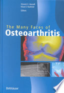 The Many Faces Of Osteoarthritis book