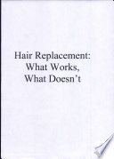 Hair Replacement What Works What Doesn T