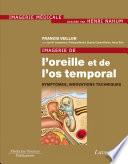 Imagerie de l oreille et de l os temporal   Volume 6    Sympt  mes  innovations techniques