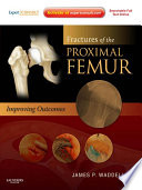 Fractures of the Proximal Femur  Improving Outcomes E Book