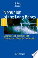 Nonunion of the Long Bones
