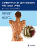 Controversies In Spine Surgery Mis Versus Open