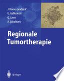 Regionale Tumortherapie