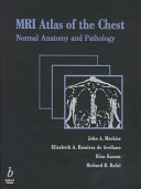 MRI Atlas of the Chest
