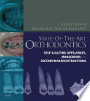 State Of The Art Orthodontics E Book
