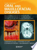 Oral and Maxillofacial Diseases An Illustrated Guide to Diagnosis and Management of Diseases of the Oral Mucosa, Gingivae, Teeth, Salivary Glands, Bones and Joints, Third Edition