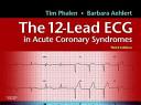 Twelve lead ECG in Acute Coronary Syndromes