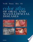 Color Atlas Of Oral And Maxillofacial Diseases E Book