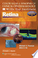 Color Atlas and Synopsis of Clinical Ophthalmology    Wills Eye Institute    Retina