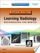 Learning Radiology  Recognizing the Basics