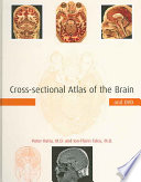 Cross-sectional Atlas of the Brain