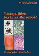 Neuropathien Bei Lyme-Borreliose