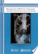 Management Of Mdr Tb