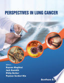 Perspectives In Lung Cancer
