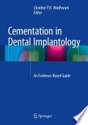 Cementation in Dental Implantology