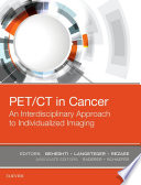 PET CT in Cancer  An Interdisciplinary Approach to Individualized Imaging