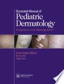 Illustrated Manual of Pediatric Dermatology
