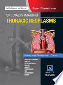 Specialty Imaging  Thoracic Neoplasms