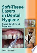 Soft Tissue Lasers In Dental Hygiene
